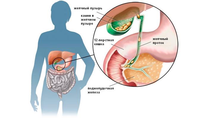 Развитие билиарного цирроза печени из-за желчекаменной болезни