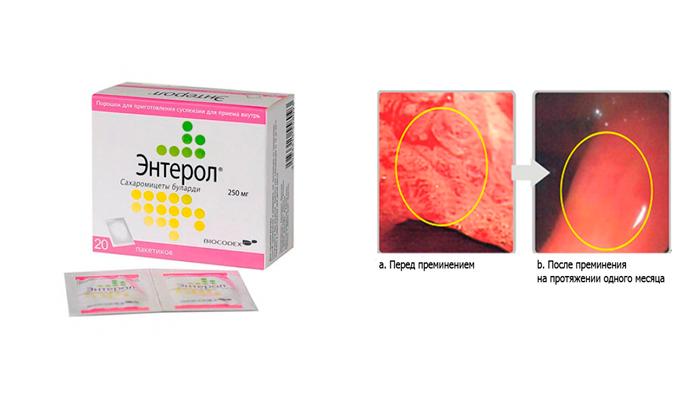 Восстановление кишечной слизистой оболочки лекарством Энтерол