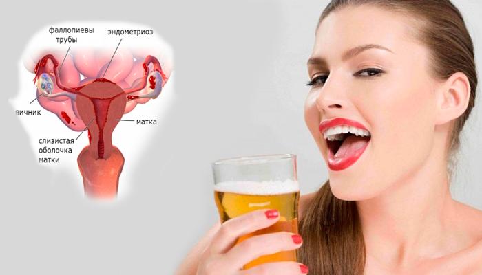 Возможный эндометриоз в следствии регулярного приема женщиной пива