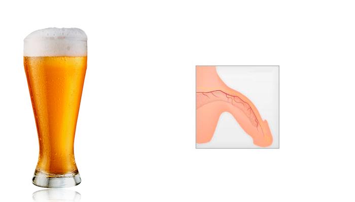 Импотенция, в следствии регулярного приема пива
