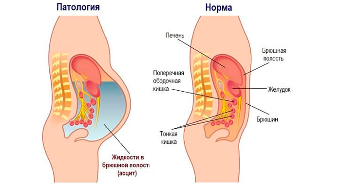 Асцит при мелкоузловом циррозе печени