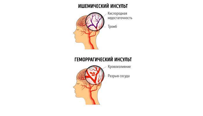 Появление отека головного мозга в следствии инсульта