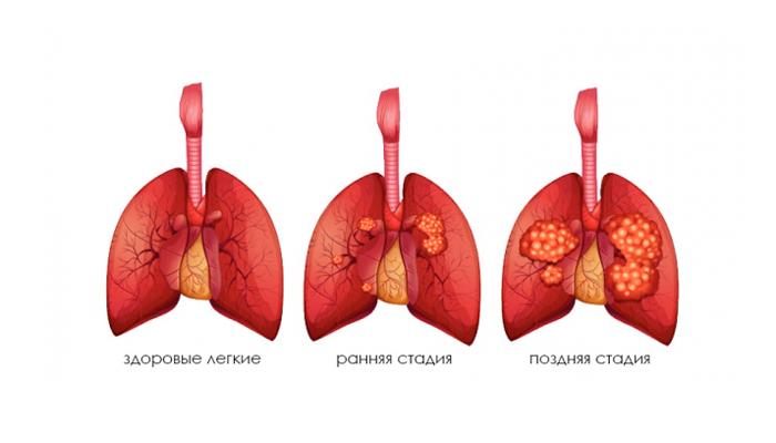 Развитие рака легких в следствии многолетнего курения