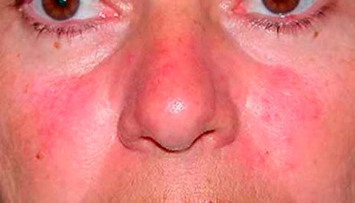 Красные пятна на лице при аллергии на вино