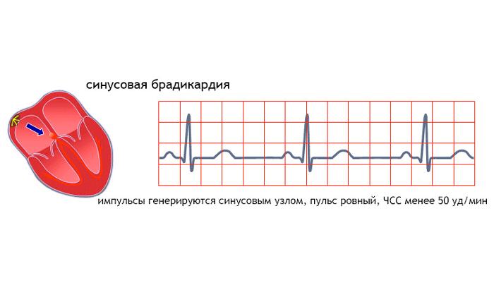 Брадокардия при сердечной недостаточности вызванной интоксикацией кокаином
