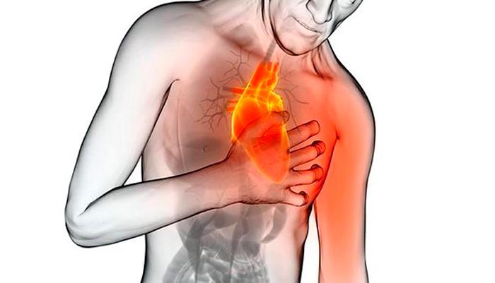 Боль в грудной области при кашле курильщика