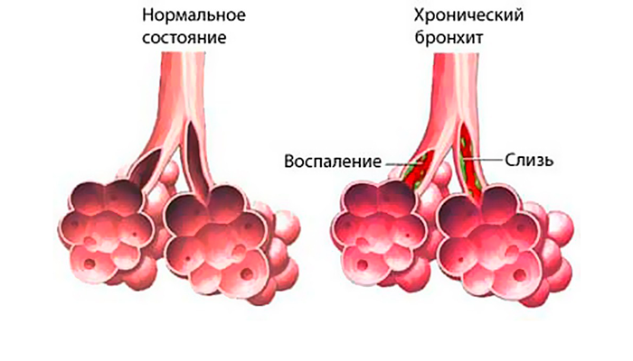 Развитие хронического бронхита в следствии длительного курения