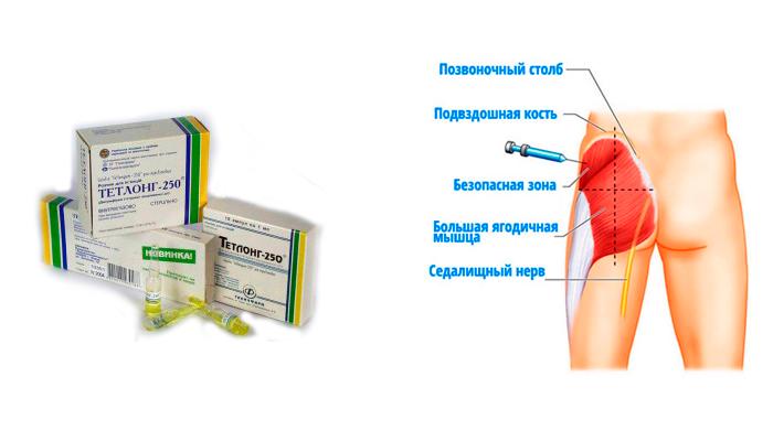 Введение лекарства Тетлонг-250 внутримышечно