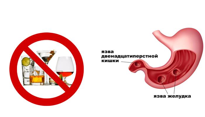 Запрет на прием алкогольных напитков при язве желудка
