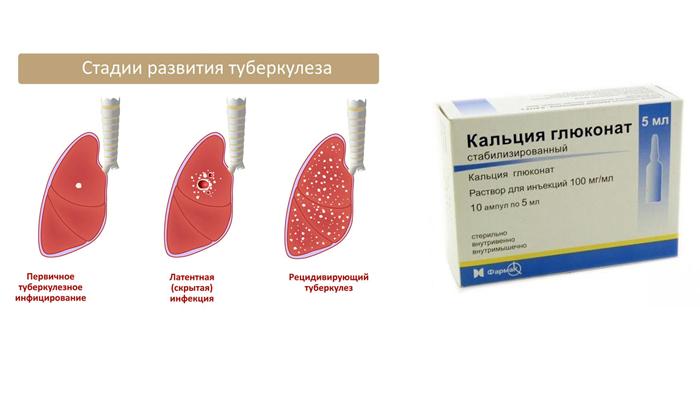 Применение Глюконата Кальция при туберкулезе легких