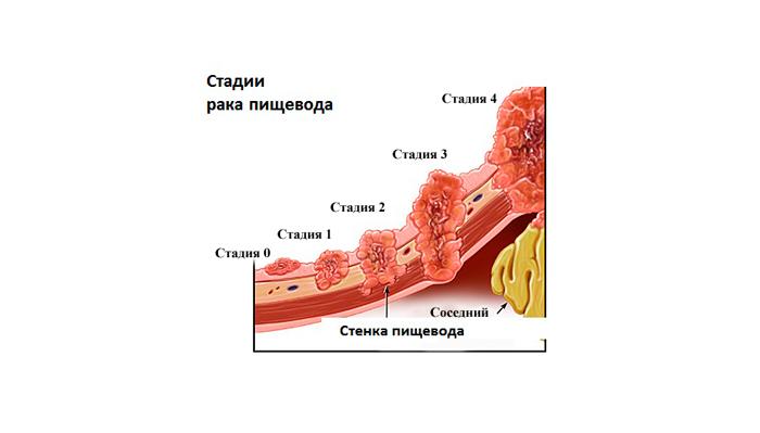 Возможный рак пищевода, вызванный регулярным употреблением алкоголя