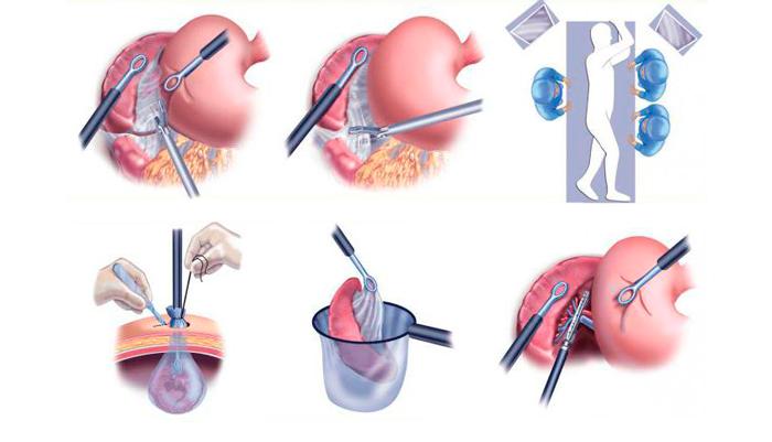 Схема операции по удалению селезенки - спленэктомии