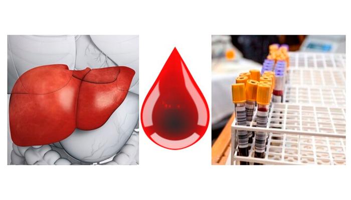 Анализ крови для диагностирования алкогольной интоксикации печени