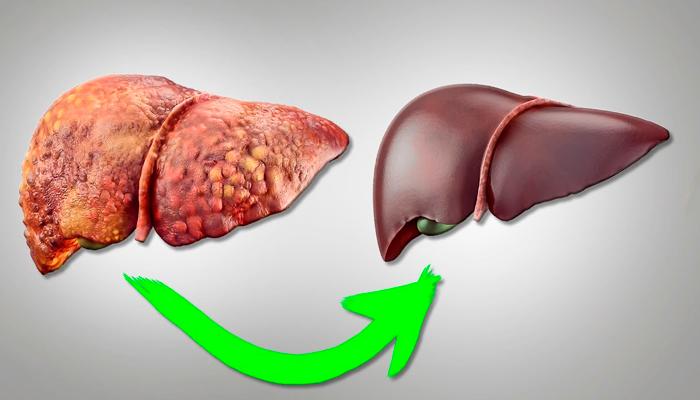Восстановление печени в следствии применения лекарства Антиал