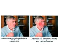 Непереносимость алкоголя: основные симптомы и причины образования