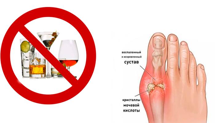 Запрет на спиртные напитки при подагре