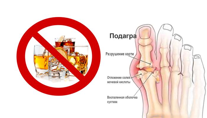 Запрет на употребление крепких алкогольных напитков при подагре