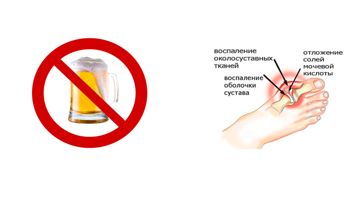 Запрет на пиво в случае подагры