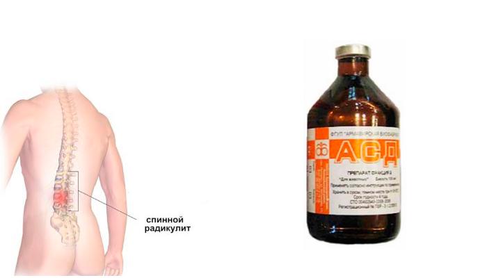 Применение лекарственного средства АСД 2 при радикулите