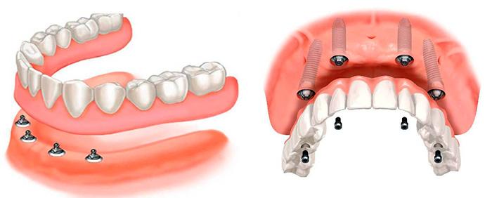 Имплантация зубов с восстановлением всего ряда - 4 all on