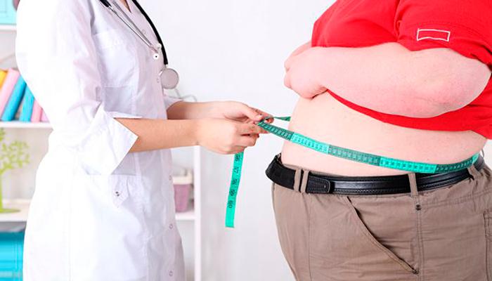 Ожирение, как один из признаков компульсивного переедания