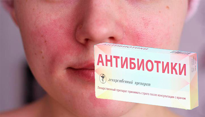 Покраснение кожи лица в следствии негативной реакции на антибиотики