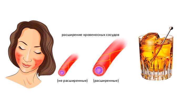 Покраснение кожи лица из-за расширения сосудов
