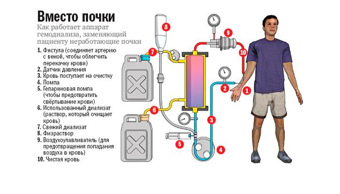 Фильтрация крови в помощь при коме почек