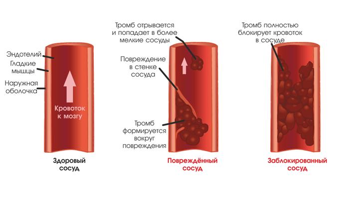Тромбоз сосудов, как одно из побочных действий лекарства СтопЭтил