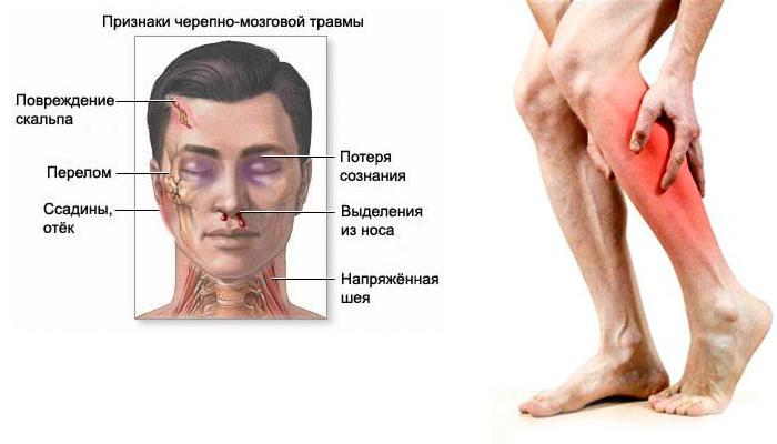 Судороги при алкогольном отравлении в следствии пережитой черепно-мозговой травмы