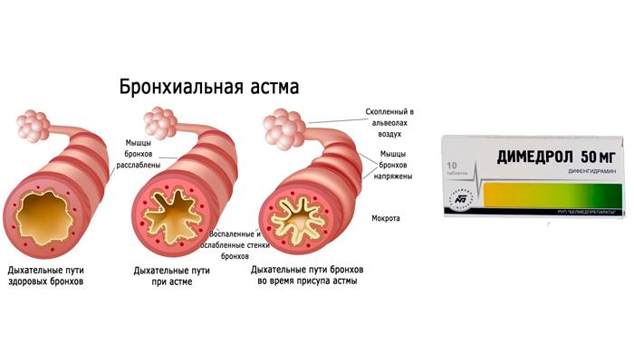 Применение Димедрола при бронхиальной астме