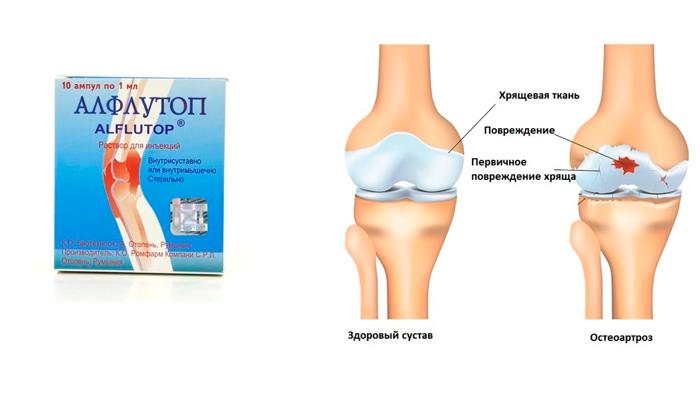Применение препарата Алфлутоп при остеоартрозе