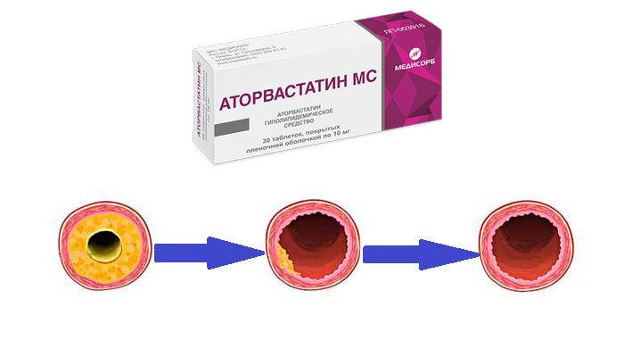 Снижение уровня холестерина в крови в следствии приема лекарства Аторвастатин