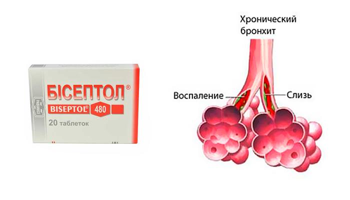 Применение препарата Бисептол при хроническом бронхите