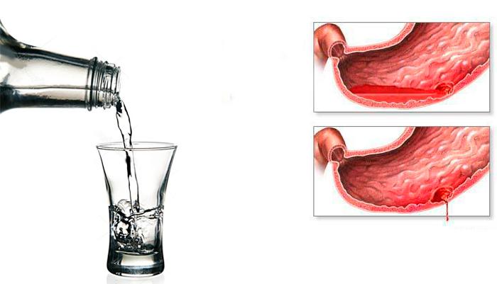 Кровотечения в ЖКТ в следствии чрезмерного употребления алкоголя