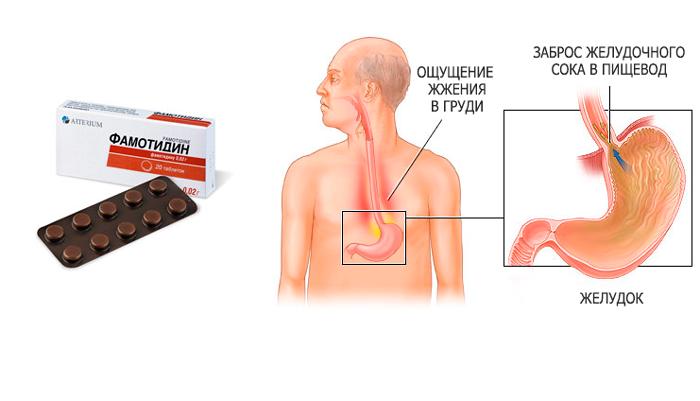 Применение лекарства Фамотидин при рефлюксном эзофагите