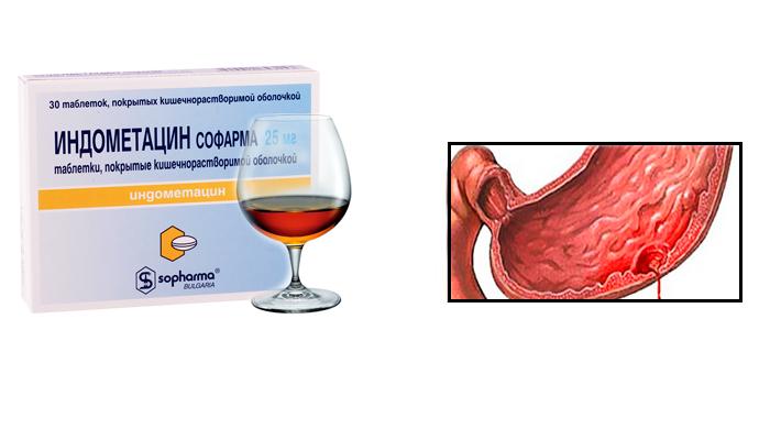 Кровотечение в ЖКТ, как одно из последствий совместного употребления Индометацина и спиртного