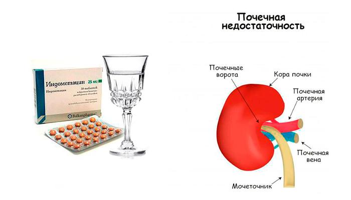 Почечная недостаточность в следствии смешивания Индометацина и алкоголя