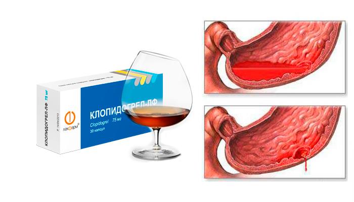 Кровотечения в ЖКТ, как одно из опасных последствий совместного употребления Клопидогрела и алкогольных напитков