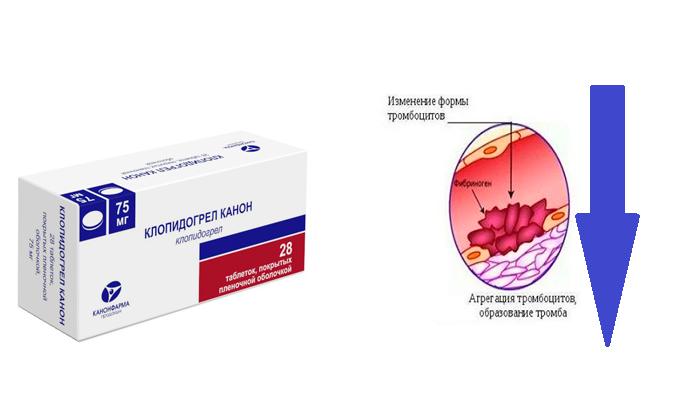 Снижение агрегации тромбоцитов при применении лекарственного средства Клопидогрел