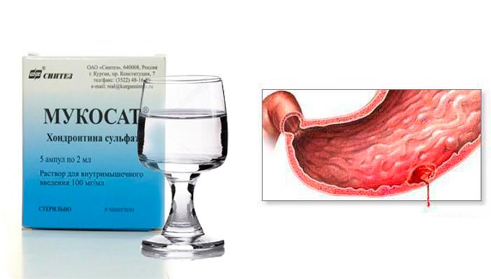 Кровотечения в ЖКТ, как одно из последствий совместного приема препарата Мукосат и алкоголя