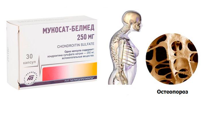 Применение лекарства Мукосат при остеопорозе