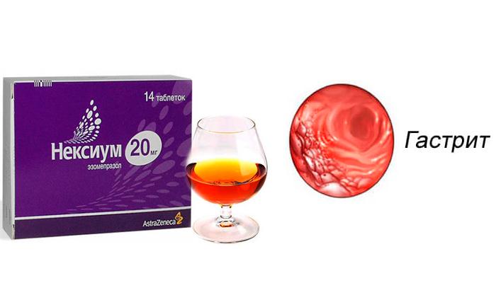 Обострение гастрита в следствии смешивания лекарства Нексиум и спиртного