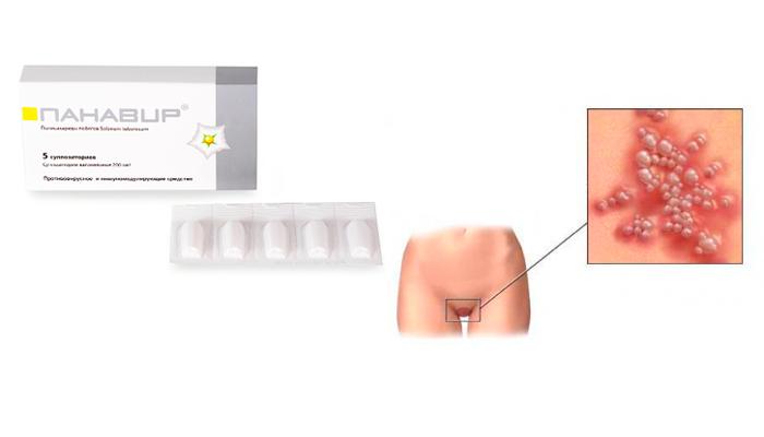 Применение суппозиторий Панавир при генитальном герпесе