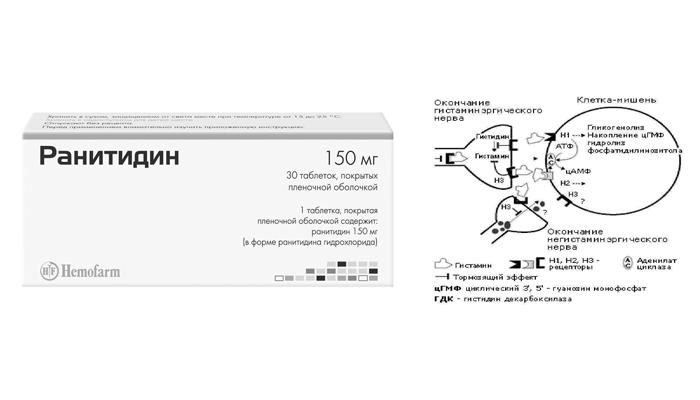 Блокада H2-гистаминового рецептора с помощью лекарственного средства Ранитидин