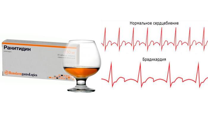 Брадикардия, как одно из последствий совместного употребления препарата Ранитидин с алкоголем