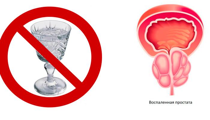 Запрет на употребление спиртного при простатите