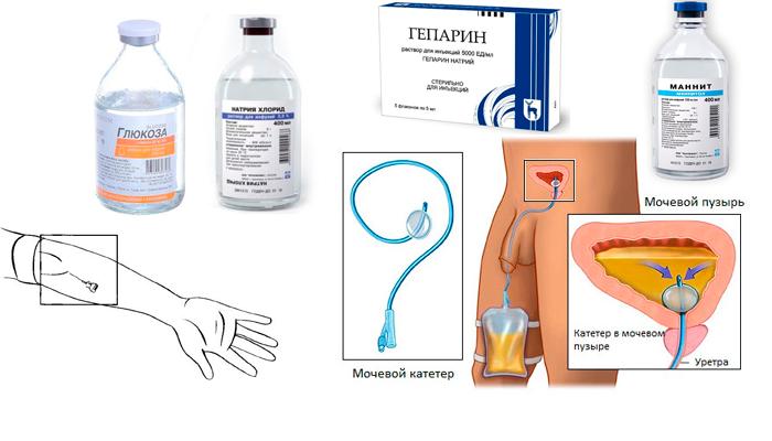 Схема проведения процедуры форсированного диуреза