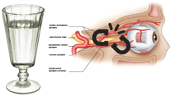 Нарушение кровообращения глаза из-за чрезмерного употребления алкоголя